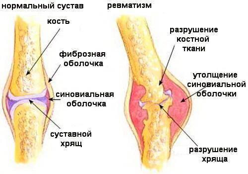 причины болезни ревматизм