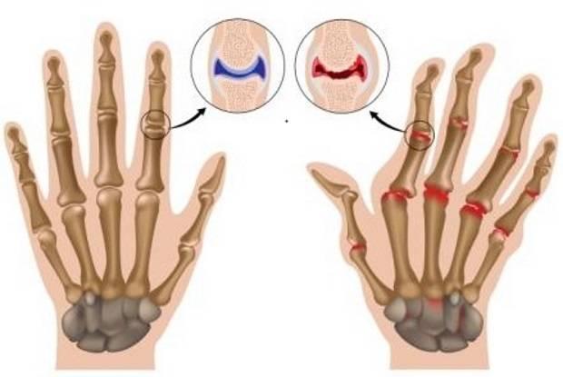 анализ крови на ревматизм суставов