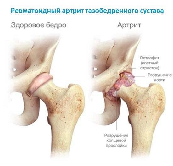 Какими лекарствами лечат артроз тазобедренного сустава