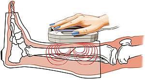 артроз голеностопного сустава лечение магнитом