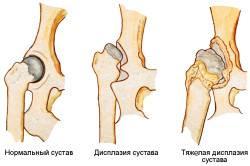 Виды дисплазии тазобедренного сустава