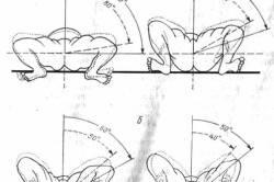 Разведение ног при дисплазии тазобедренных суставов
