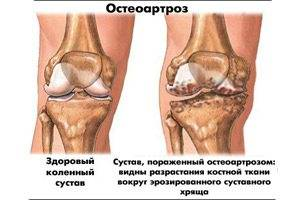 Причины остеоартроза