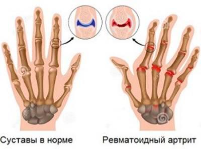 Норма и ревматоидный артрит пальцев рук