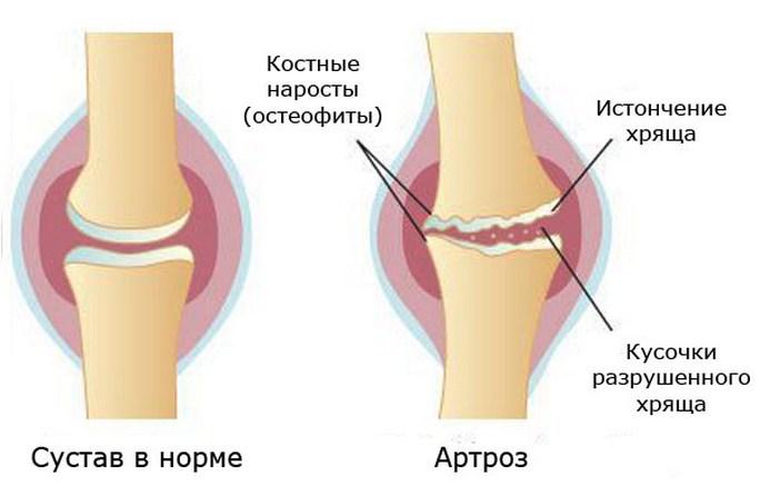 Псориаз суставов симптомы — Суставы