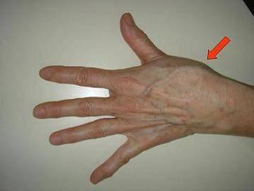 Сильно болят большие пальцы на руках