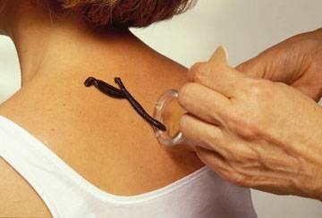 Гирудотерапия плечевого периартрита