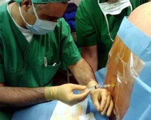 Эпидуральная анестезия при артроскопии