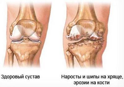 Проявление гонартроза коленного сустава