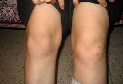 Припухлость колена при гонартрозе