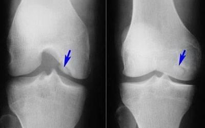Рентген гонартроза 2 степени