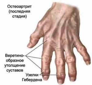лечение деформирующего артроза кистей рук