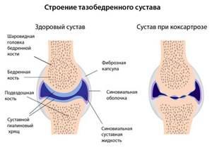 Средства народной медицины для лечения артроза