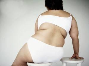 ожирение - одна из причин артроза