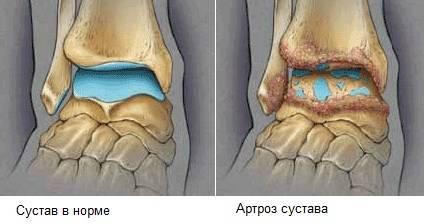 артроз голеностопного сустава