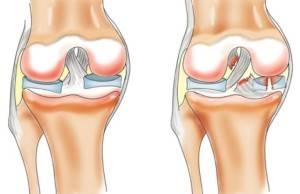 artrozo-artrit-kolennogo-sustava