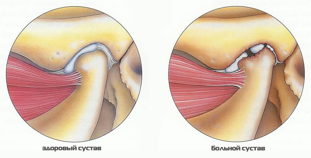 Артрит челюстно сустава