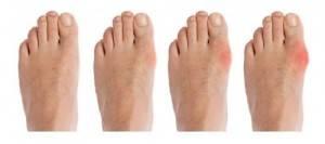 стадии артрита стопы