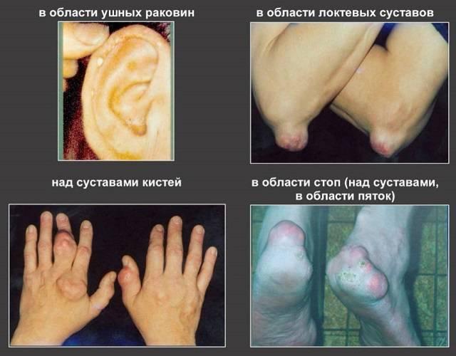 анализ крови при подагре
