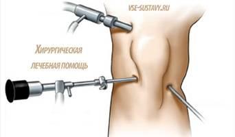 Хирургическая лечебная помощь при менисците