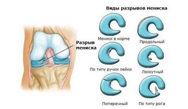 Типы травмы