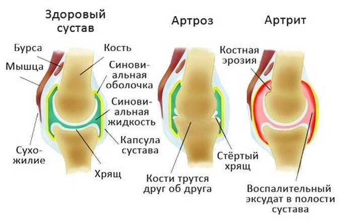 Разница артроза от артрита