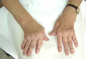 artroz palcev ruk