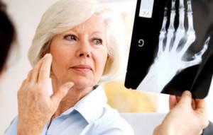 artroz palcev na rukah