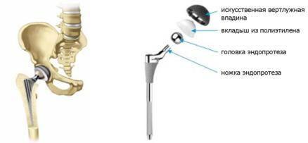 Осложнения после эндопротезирования тазобедренного сустава4