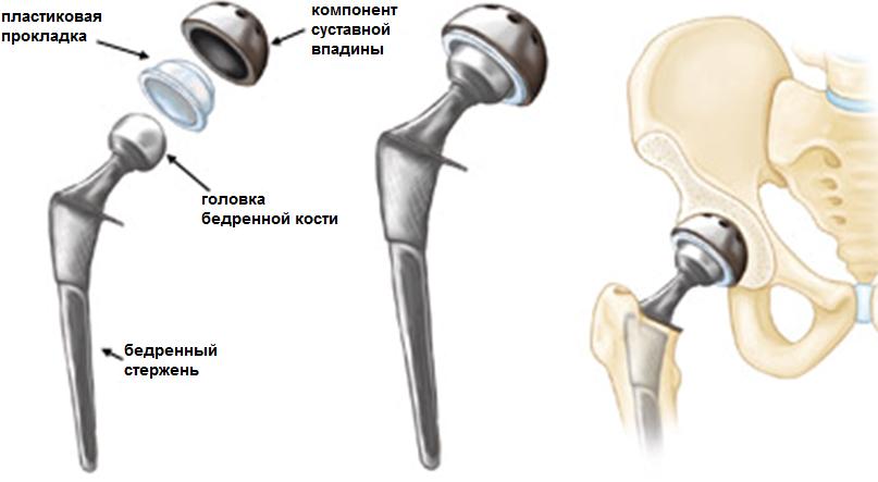 Осложнения после эндопротезирования тазобедренного сустава5