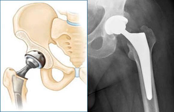 Осложнения после эндопротезирования тазобедренного сустава6