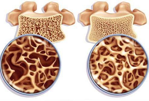 остеопороз врач