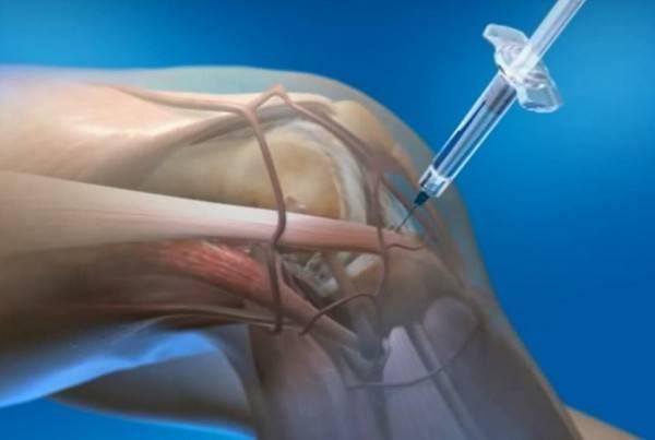 Разрыв заднего рога медиального мениска коленного сустава — Суставы