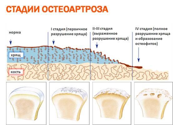 степени спондилоартроза