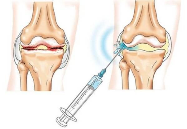 инъекции по замене сустава
