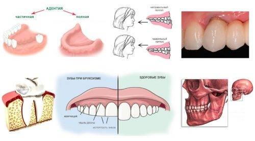 Причины артроза челюсти