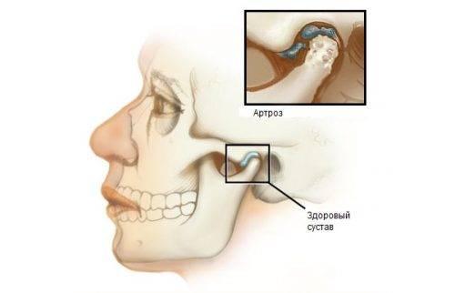 Изменения при артрозе челюстно-лицевого сустава