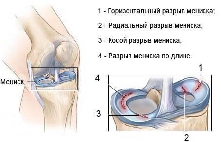 razriv_meniska