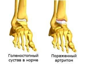 Советы о том как развивается болезнь при артрите голеностопного сустава