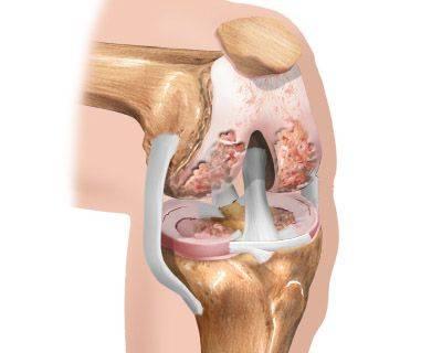 При запущенном артрозе колена операция неизбежна