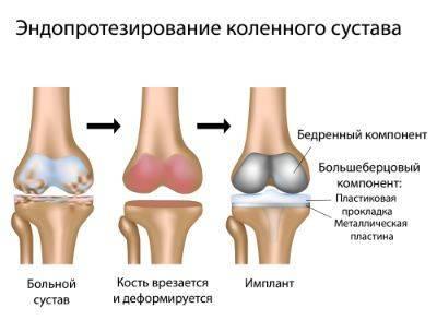 Процесс частичной замены сустава колена