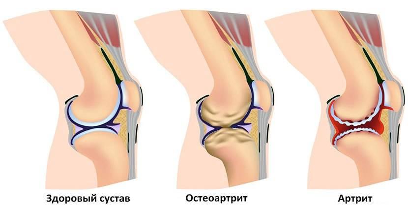 После замены коленного сустава