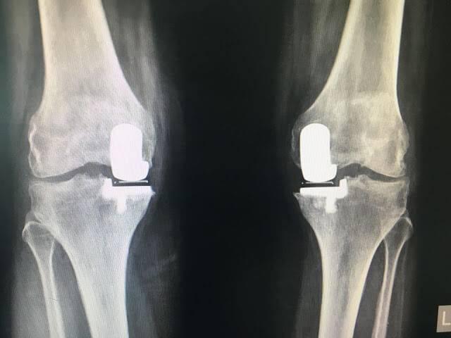 Замена коленного сустава отзывы
