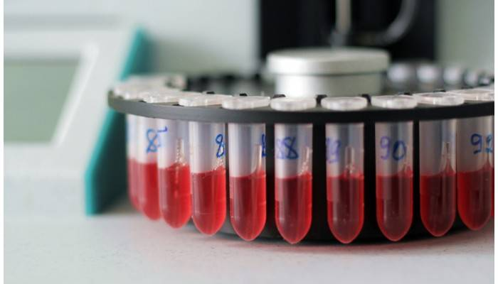 test of blood