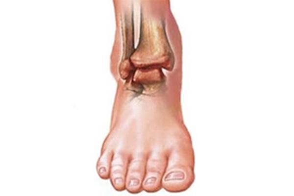 Ревматоидный артрит голеностопа