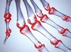 Анализ крови на артрит и артроз