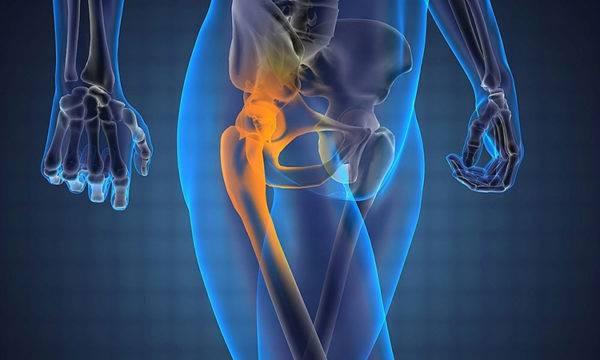 Боль в тазобедренном суставе при вставании из положения лежа на спине