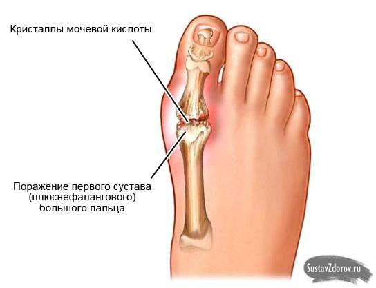 Подагра: поражение большого пальца стопы