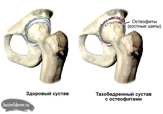 тазобедренный сустав в норме и с остеофитами