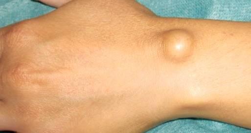 Внешний вид гигромы лучезапястного сустава